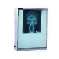 (*) Dollhouse Miniature X-Ray Screen Box - Product Image